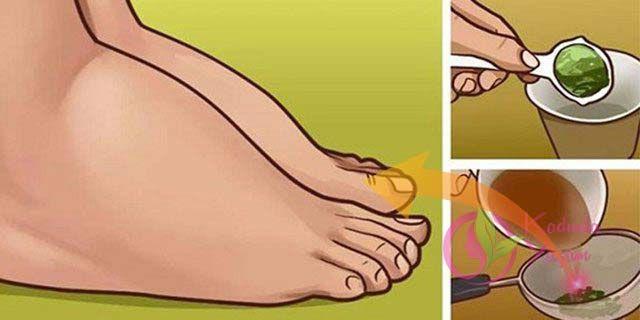Su tutma, sıklıkla ayakların ve gövdenin şişmesinden dolayı ağrıya neden olur ve bunu yaşarsanız, çok rahatsız edici ve acı vericidir. Su tutma, tıpta ödem olarak bilinir ve aslında çeşitli nedenlerden ötürü vücutta aşırı sıvılar birikimi oluşur ve bunu çözmek için tavsiyeler vereceğiz. Bu şişmeler yüksek tansiyon ve yüksek nabız ve kilo alımına neden olabilir. Genellikle …
