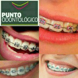 Brackets ortodoncia Montevideo
