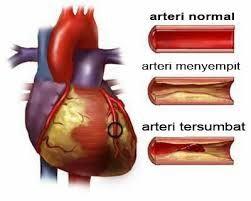 Obat Jantung Bocor >> Jantung Bocor adalah salah satu penyakit yang penderita nya banyak di indonesia, hal ini harus di waspadai karena penyakit ini dapat menyerang siapa saja termasuk pada anak-anak.