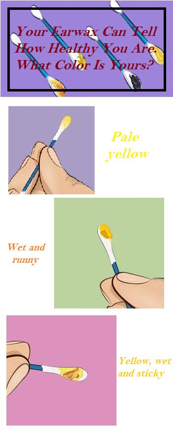 Your Earwax Can Tell How Healthy You Are What Color Is Yours