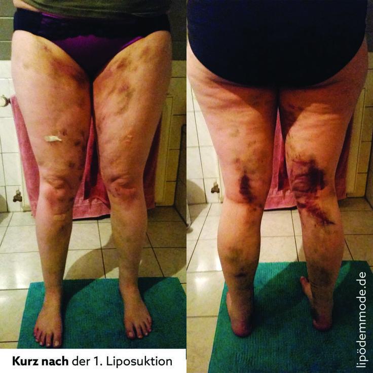 lipoedemmode liposuktion erste op erfahrung erfahrungsbericht