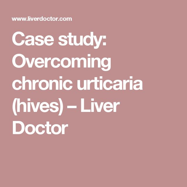 Case study: Overcoming chronic urticaria (hives) – Liver Doctor