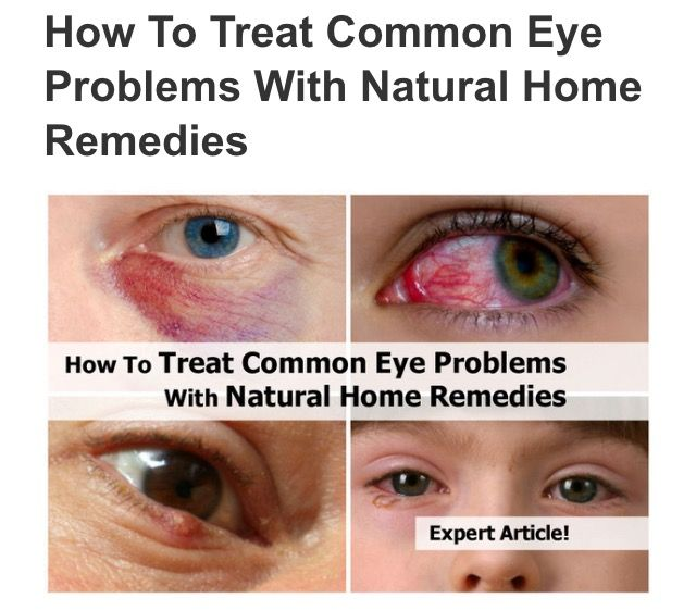 How To Treat Common Eye Problems With Natural Home Remedies