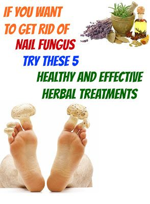 If You Want to Get Rid of Nail Fungus Try These 5 Healthy and Effective Herbal Treatments