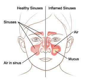 Devinisi,Penyebab,Gejala dan Cara Pengobatan Sinusitis _ Sinusitis