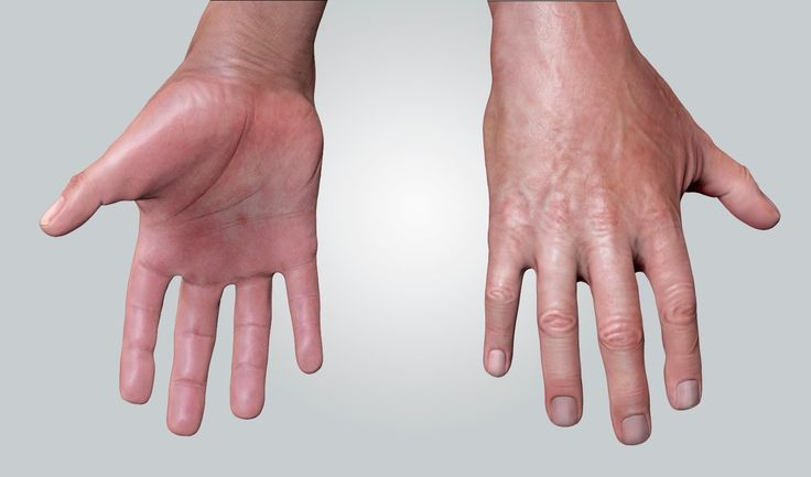 "Sweating Too Much, Overactive Sweat Glands, Stop Sweaty Hands, Too Much Sweating  http://sweating-cure.info-pro.co  These Excessive Sweating Tips = Great Results Discover this Stop Sweating Secret Sweat Too Much? This will Help...  Have you ever heard of ""Stacking""? .  It's an effective strategy for combining anti-sweating treatments to work in cooperation. The results are all-day dryness.  This is a game changer that will make you feel more confident instantly!"