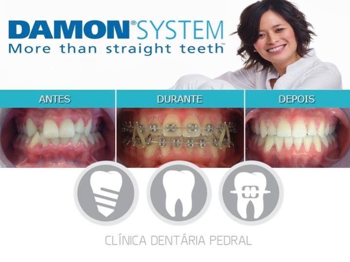 Ortodontia Fixa | DAMON System | Dra. Liliana Sá| Para mais informações contacte 253 546 052 | 918 977 320 | clinicapedral@gmail.com