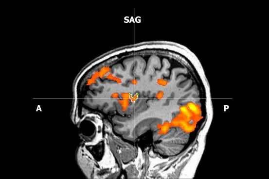 Neurofeedback uses real-time scans to teach patients to try to change how they think.