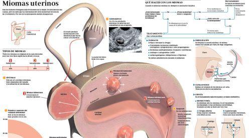 Imagen preview infográfico miomas uterinos