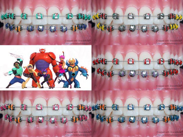 Cinematic Saturdays  #bighero6 #disney #hirohamada #baymax #marvel #braces #ortodoncia #ortodoncista #ortodonzia #ortodontia #ortodontista #orthodontie #kieferorthopädie #zahnspange #brackets #movies