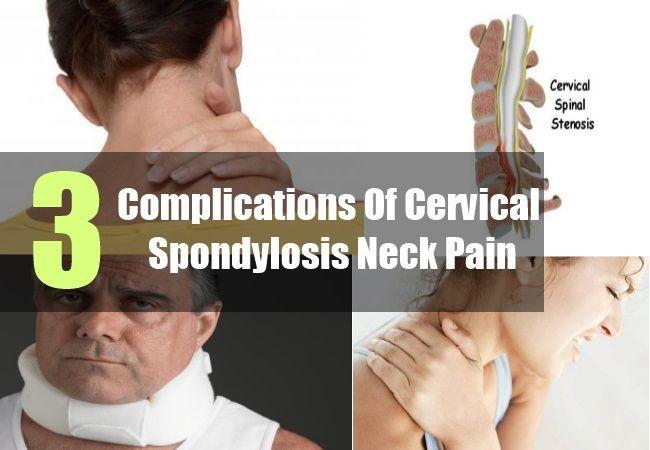 Complications Of Cervical Spondylosis Neck Pain