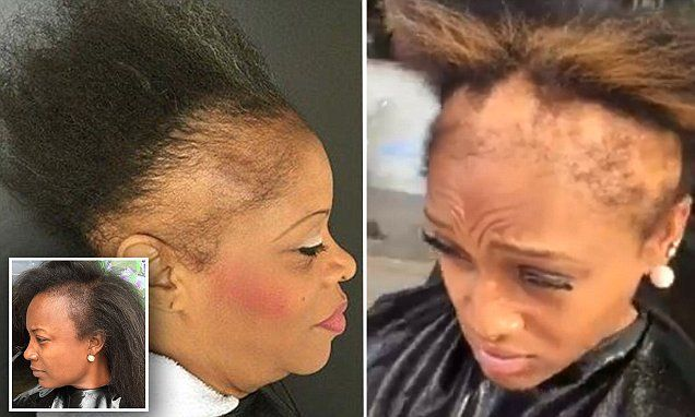 Jasmine Collins, owner of Razor Chic of Atlanta, recently took to Facebook to post clip of a 23-year-old with a receding hairline. The video has been viewed more than 3.1 million times.