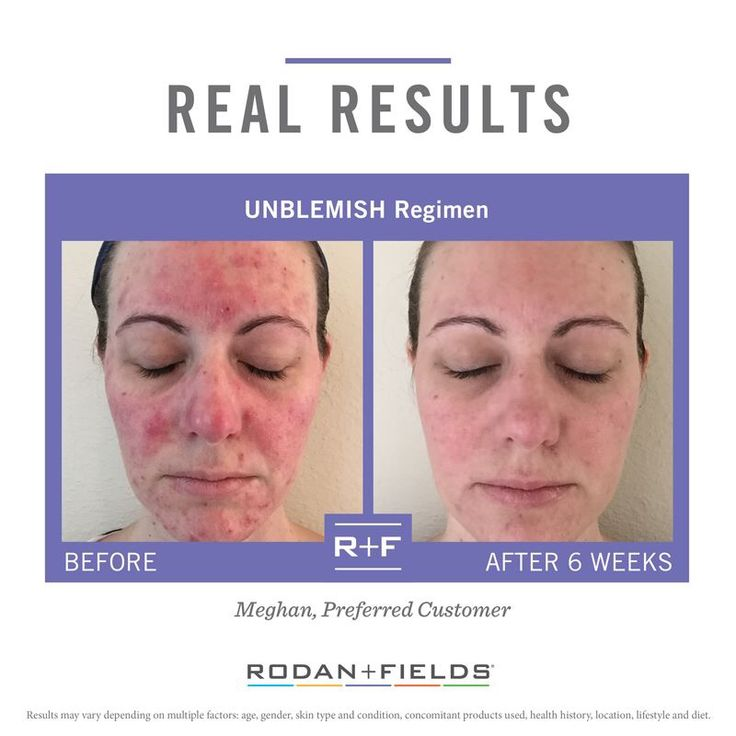 """Before using Rodan + Fields, I had to wear heavy layers of makeup to hide blemishes and redness and would never think of leaving my home without it. After just one week, I noticed a big improvement in my skin. After just 6 weeks, my skin is calm and almost completely clear. These products have been completely life changing."" –R + F PC, Meghan Roberts."