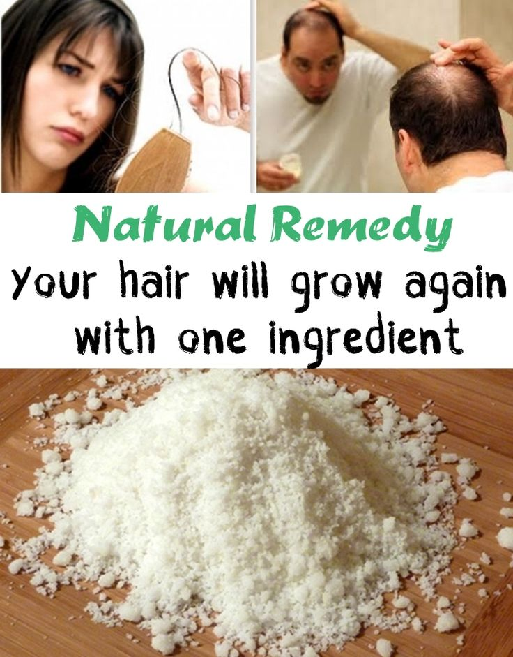 Hair lossNatural Remedy Your hair will grow again with