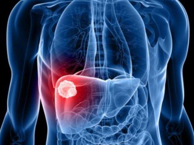 Descubren dos mutaciones en cáncer de hígado que señalan un nuevo tratamiento