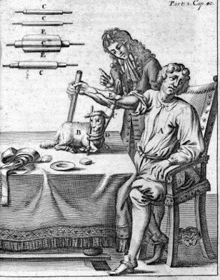 En el siglo XVI  William Harvey y Miguel Servet, R. Lower empezaron a hacer transfusiones en animales y Jean Baptiste Denys en 1667 fue el primero que lo hizo en humanos, le transfirió 1 litro de sangre de cordero a un adolescente después de una sangría. No tardó mucho en prohibirse está técnica por su supuesta peligrosidad y se retomó por el médico inglés James Blundell mucho más tarde en 1818, esta transfusión se realizó gracias a una jeringa.