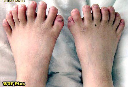I Need Toe Socks @Caitlin Williams, again I think of you!!!