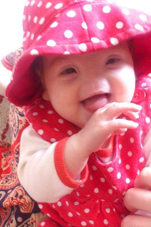 This Little Girl Was Born Without A Nose And She Can't Stop Smiling