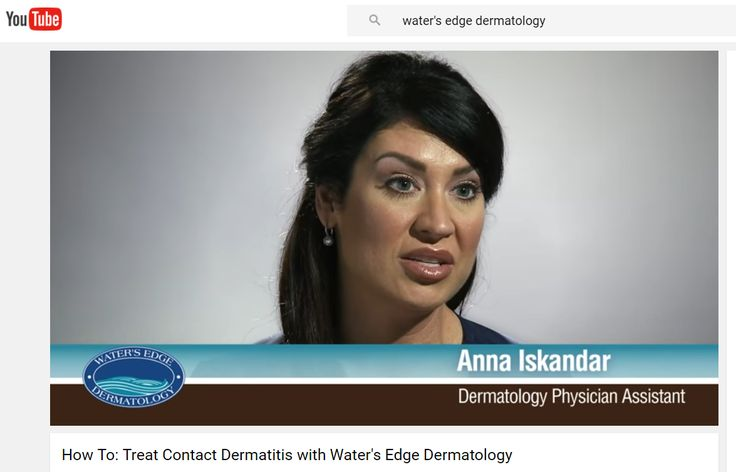 #WatersEdgeDerm provider Anna Iskandar on causes, diagnosis and treatment of Contact Dermatitis -- a very common #skinproblem most of us just call a red, itchy #rash). Watch the short video: https://www.youtube.com/watch?v=xFfo4VfEs6s #skincare #Florida #Dermatologist