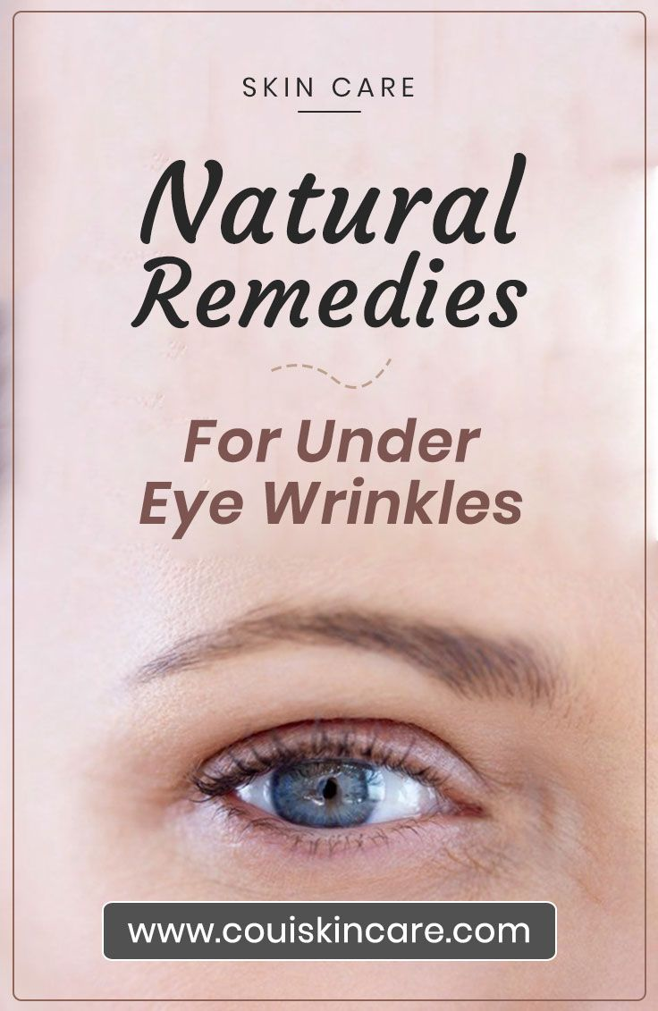 Natural Remedies For Under Eye Wrinkles Under eye