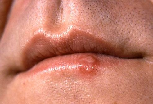 How To Prevent and Get Rid of Cold Sores