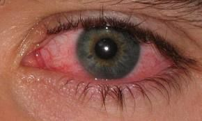 """Natural remedy for """"pink eye"""", conjunctivitis. sorry about this pic, it makes my eyes water."""