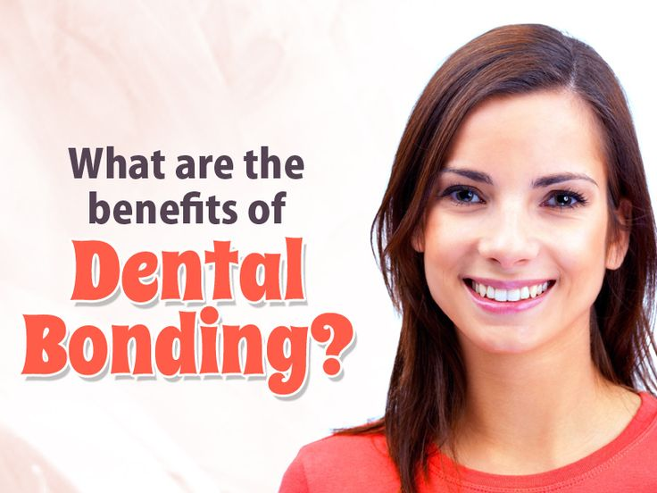 Benefits of #dental #bonding are: - Tooth bonding is a cosmetic treatment used to repair chipped teeth, gaps between the teeth, and cavity filling. - Matches teeth color and improves appearance - Replaces Amalgam Fillings - Affordable and safe treatment - Hide Dental Flaws