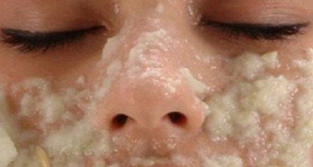Voici des astuces naturelles à base de jus de pomme de terre pour venir à bout des taches brunes qui apparaissent sur le visage et la peau.