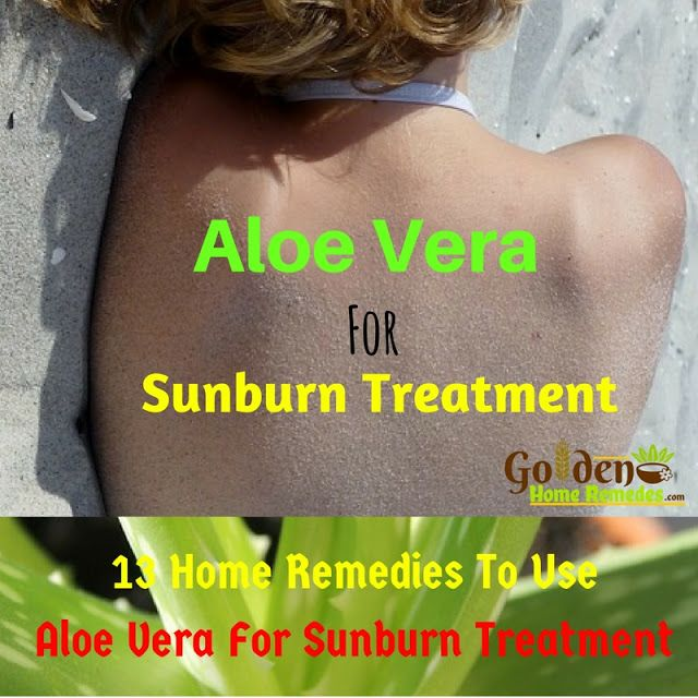 How To Treat Sunburn: 13 Ways To Use Aloe Vera For Sunburn, How To Get Rid Of Sunburn, Aloe Vera For Sunburn, Home Remedies For Sunburn, Sunburn Treatment, Aloe Vera And Sunburn, Sunburn Aloe Vera, How To Treat Sunburn,