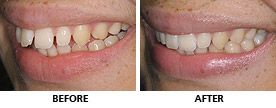 This young woman's upper teeth only took 11 weeks to straighten with an Inman Aligner. As the teeth were gently pulled back all the spaces became fully closed and she loves the look of her new smile.  http://www.praisdental.co.uk/straightening/