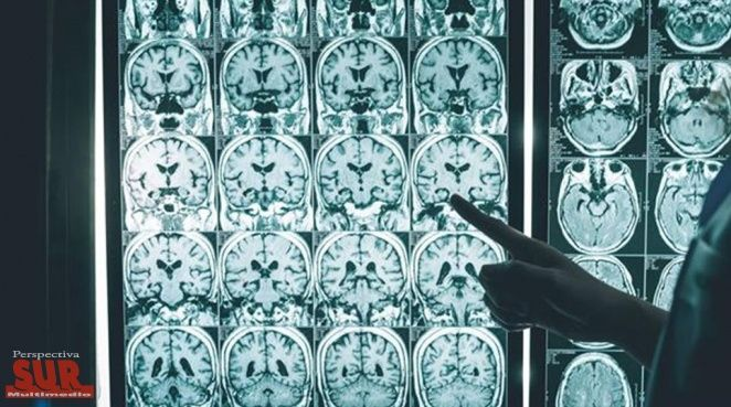 #Alzheimer: Cuáles son los hábitos que pueden reducir hasta un 35% de los casos - Perspectiva Sur: Radio Rebelde Alzheimer: Cuáles son los…