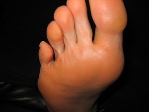 Photos of Foot Warts - Also Known as Plantar Verruca: Multiple Warts (Plantar Verruca) on Foot