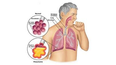 Bronchial+Pneumonia+Causes,+Incubation+Period+and+Treatment