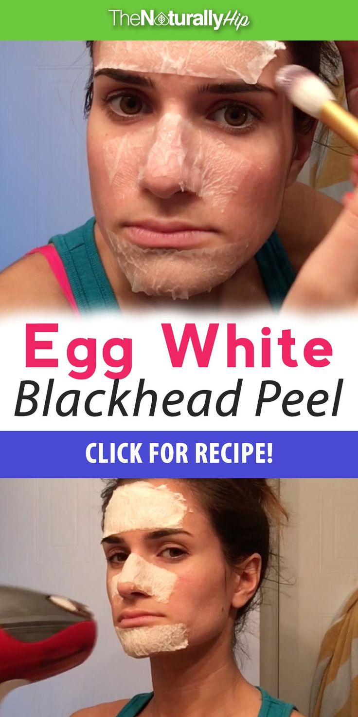 Egg White Blackhead Peel | LOVE THIS! Great way to get rid of blackheads using some really interesting ingredients!