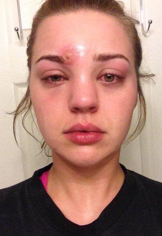 Sat nakon ceđenja bubuljice, lice joj se inficiralo! U Urgentnom, lekari su imali STRAŠNU vest!