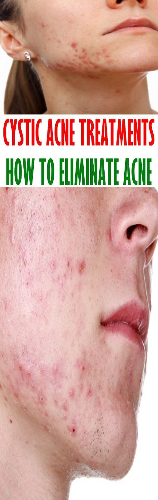 Cystic Acne Treatments – How To Eliminate Acne #acne #cysticacne #treatments #eliminateacne
