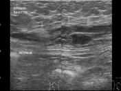 Rectus Sheath Haematoma...Rectus sheath haematomas, as the term implies, occur when a haematoma forms in the rectus abdominis muscle / rectus sheath. It is most common in its lower segment and is generally self-limiting.