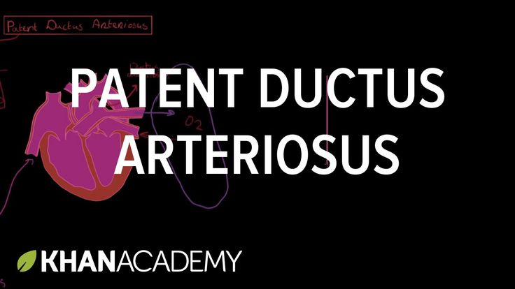 Patent ductus arteriosus | Circulatory System and Disease | NCLEX-RN | K...