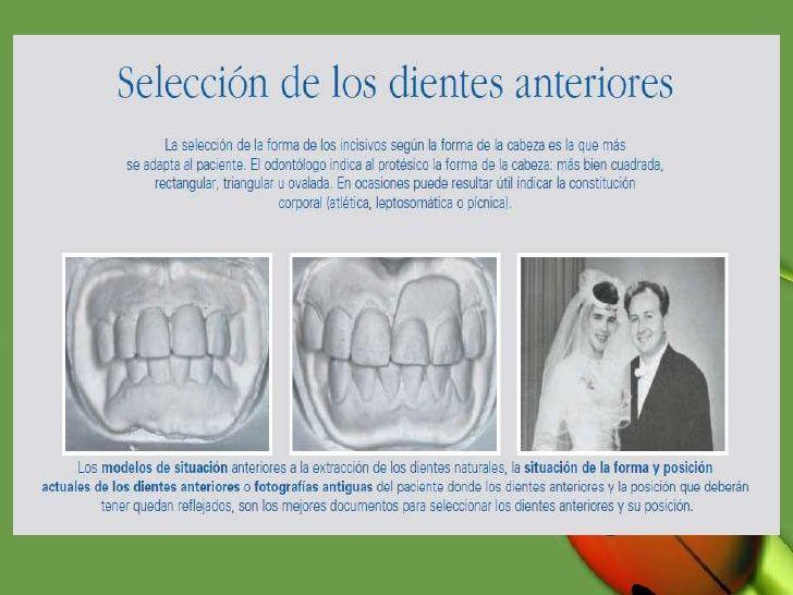 Selección de dientes