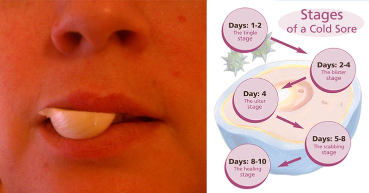 Anyone who has suffered the pain and embarrassment of a cold sore knows the symptoms all too well. A tingly, itchy, hot sensation at...
