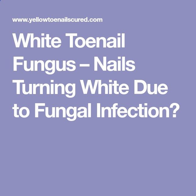 White Toenail Fungus – Nails Turning White Due to Fungal Infection?