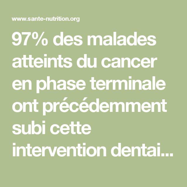 97% des malades atteints du cancer en phase terminale ont précédemment subi cette intervention dentaire - Santé Nutrition