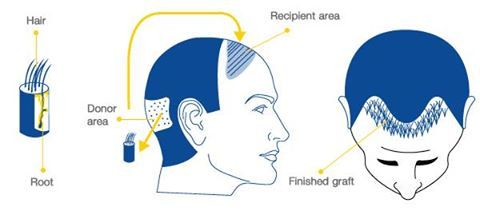 Athena hair Now hair transplant Clinic is one of the best Hair Transplant Clinic in Delhi for affordable cost for hair transplant surgery.