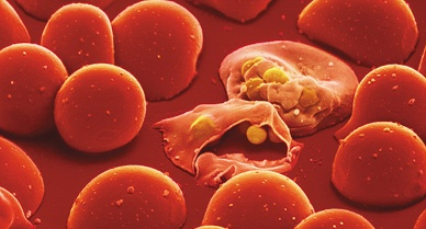 Malaria protozoa have multiplied in two cells in a culture dish of red blood cells. One has burst open releasing the parasites to infect other cells
