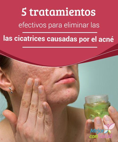5 tratamientos efectivos para eliminar las cicatrices causadas por el acné ¿El acné te dejó molestas cicatrices? Empieza a tratarlas de forma natural con estos efectivos tratamientos caseros. ¡No te los pierdas!