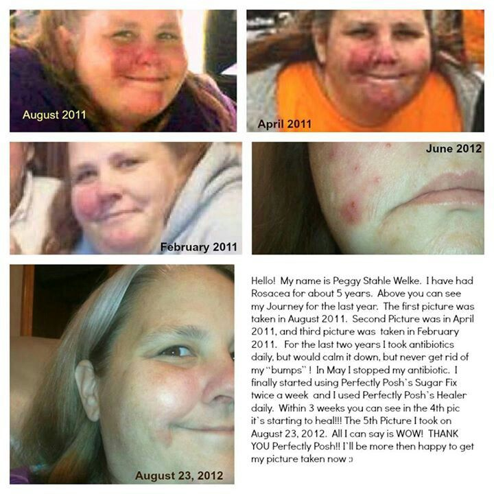 Perfectlyposh works so well on rosacea and so many other skin conditions.  Read this consultants  brave story and see her own photos about how well posh products worked for her!!