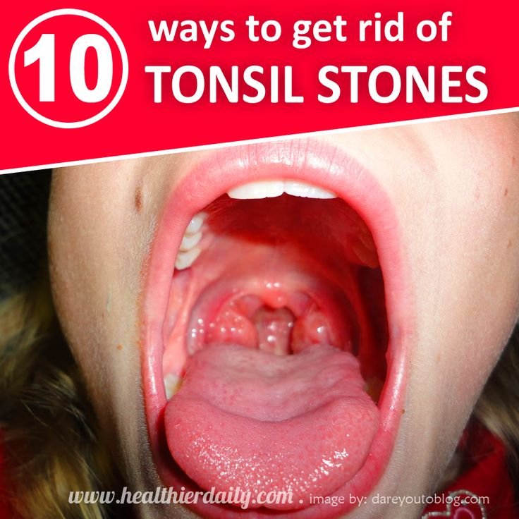 Natural Ways To Cure Tonsil Stones