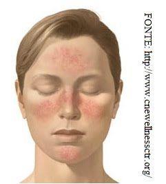 Rosácea  Causas e tratamentos   Versus Acne