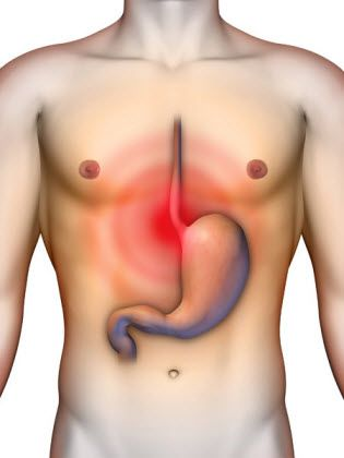 Acid reflux and heartburn are symptoms of Gastroesophageal reflux diseases. 8 acupressure points to treat gastric acid reflux and heartburn effectively.