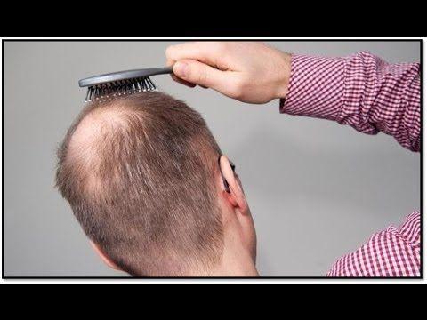 Was Hilft Bei Haarausfall - Was Kann Man Gegen Haarausfall Tun http://haarausfall-heilung.info-pro.co Angeborene Veränderungen: Bei kleinen Kindern zeigt sich ein vermeintlicher Haarausfall. Wurden Tatsächlich die Haare vor aber der Geburt gar nicht angelegt oder sie im verbleiben Estadio des Flaumhaares. Pierde Anagenhaar: Hier ist die Haarstruktur verändert. Es handelt sich um einen dabei vererbten Defekt. Die Haare sind dünn, brüchig und perder. Wenn man